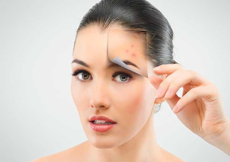 acne-palencia