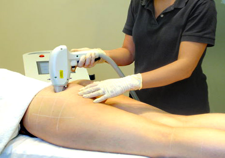 The facts about laser pubic bikini line hair removal
